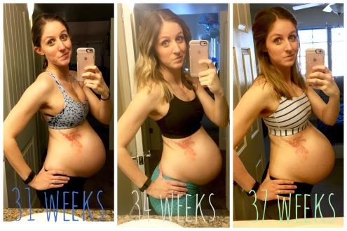 37 week bra pic